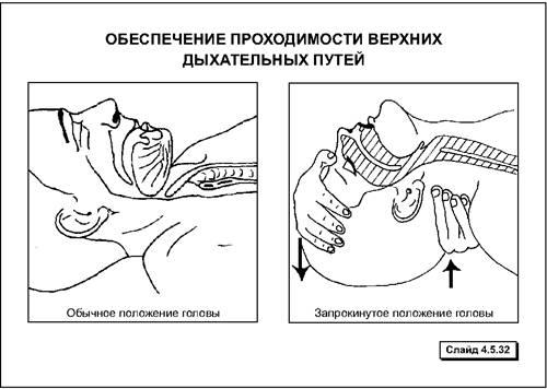 Правила проведения сердечно легочной реанимации