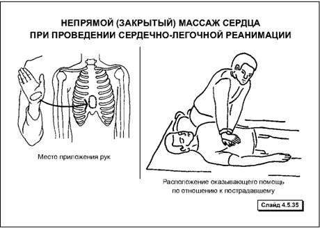 Этапы сердечно легочной реанимации Студопедия 4 энергичным толчкообразным движением выпрямленных рук надавливать на грудину на глубину 4 5 см используя при этом вес собственного тела