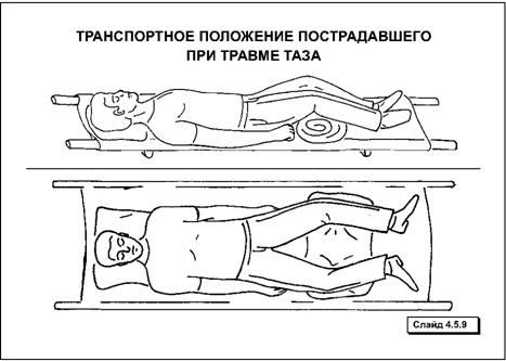 Транспортировка больных. Как правильно и безопасно транспортировать человека с травмой позвоночника и таза.
