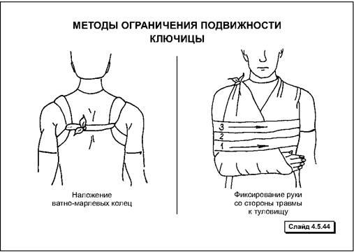 Первая помощь при травмах груди — Студопедия