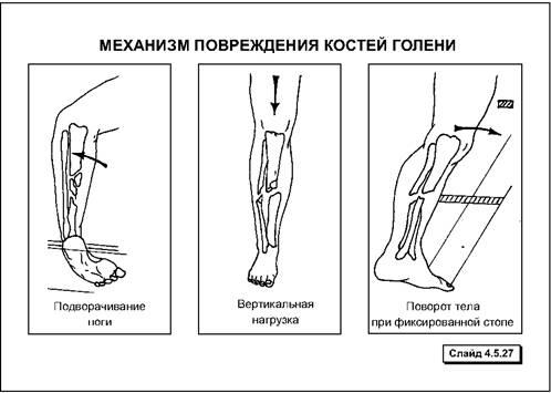 Травмы конечностей — Студопедия