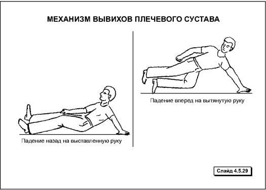 Повреждение конечностей, суставов, кру тайская лечебная трава n 28 от подагры суставы